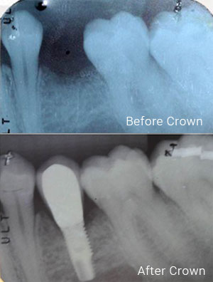 crown-treatment1